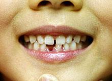 画像:乳歯